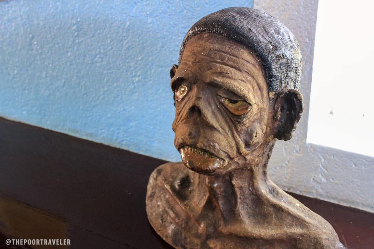 A 3D model of a leprosy patient